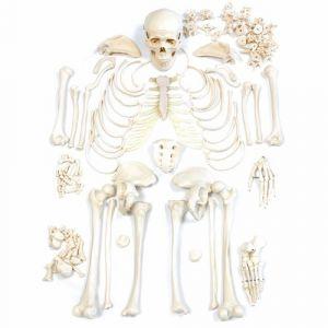 Unmontierter Skelett-Satz ST-ATM 09