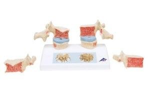 Anatomisches Modell Osteoporose ST-ATM 45