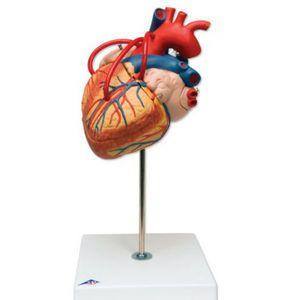 Anatomisches Modell Herz mit Bypass ST-ATM 74